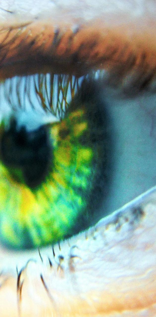 Davuds eye